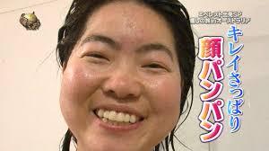 イモトアヤコ 彼氏 歯 治療